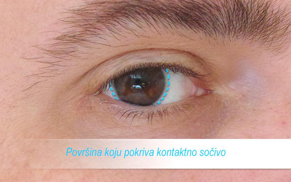 kontaktna-sociva