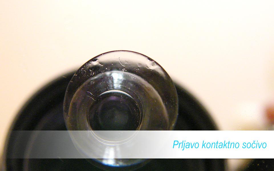 Prljavo kontaktno sočivo