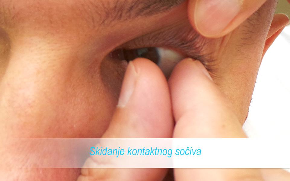 Skidanje kontaktnih sočiva