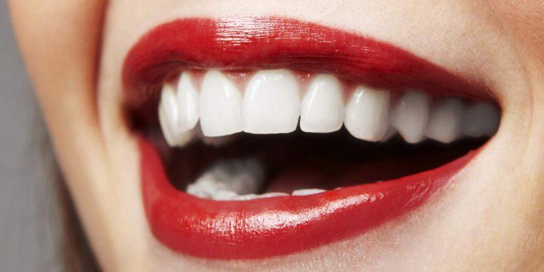 Fasete za zube